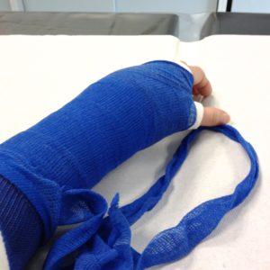 Gips arm wie lange gebrochen Arm in